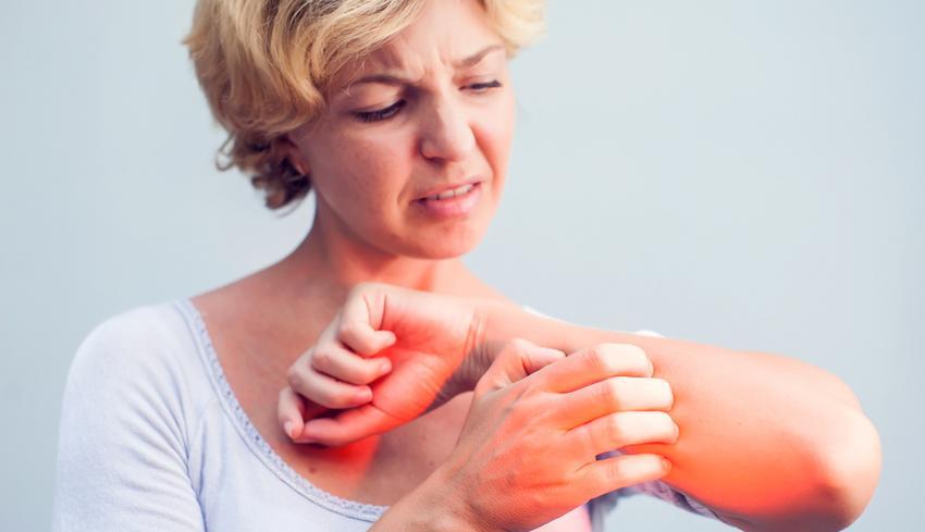 vörös száraz folt a kezén növekszik viszkető fejbőr pikkelysömör kezelése