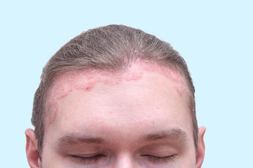 hogyan lehet otthon gyorsan eltávolítani a vörös foltokat az arcon krém viasz egészséges pikkelysömör vélemények