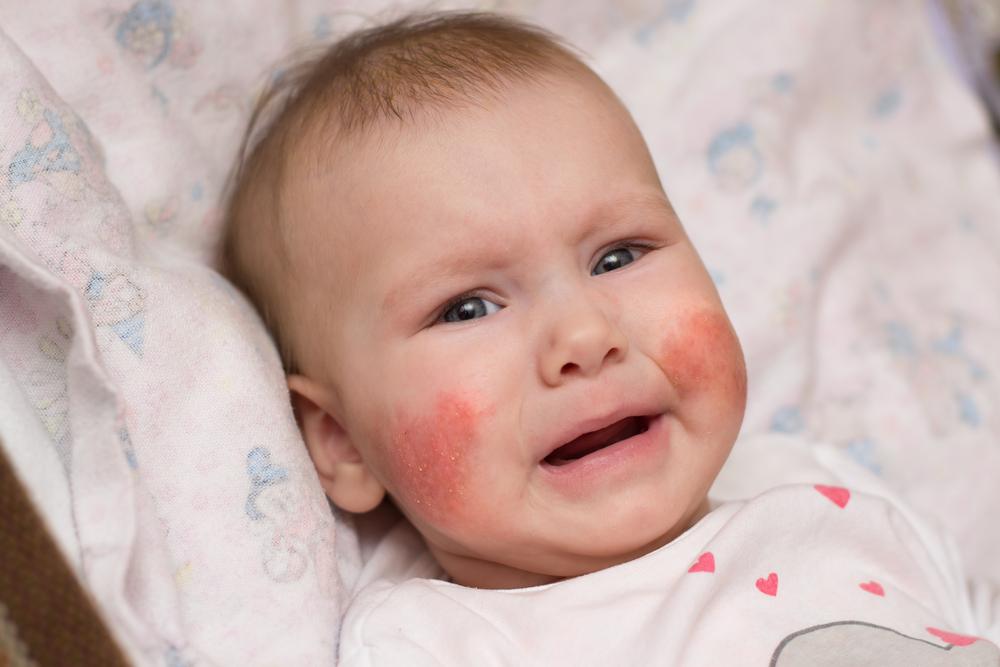 vörös pikkelyes foltok az orrán és környékén