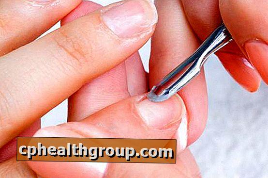 A bőr Erysipelas - az erysipelas népi jogorvoslatok kezelése - Anatómia November