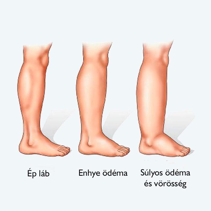 diabetes mellitus vörös foltok jelentek meg a lábakon