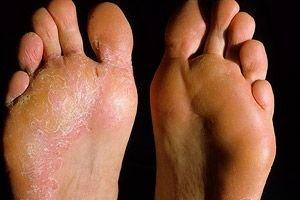 thuja pikkelysömör kezelése piros foltok a testen és a kezeken fotó