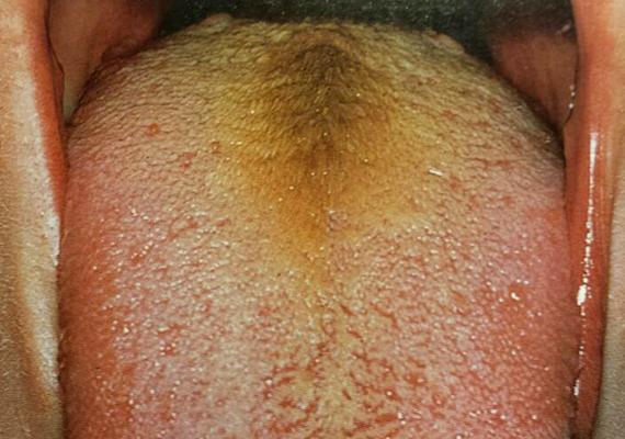 Milyen színű lepedék van a nyelveden? Erre a betegségre utalhat - Egészség | Femina