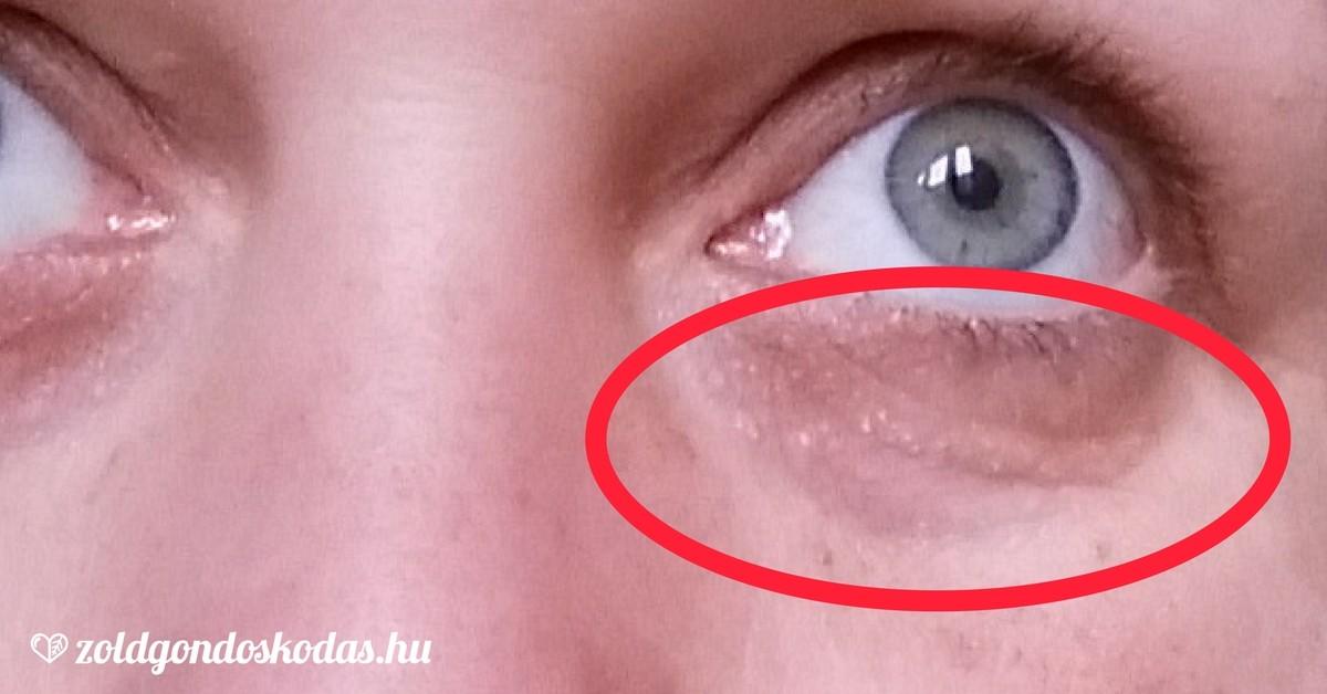vörös folt az orron, hogyan lehet eltávolítani