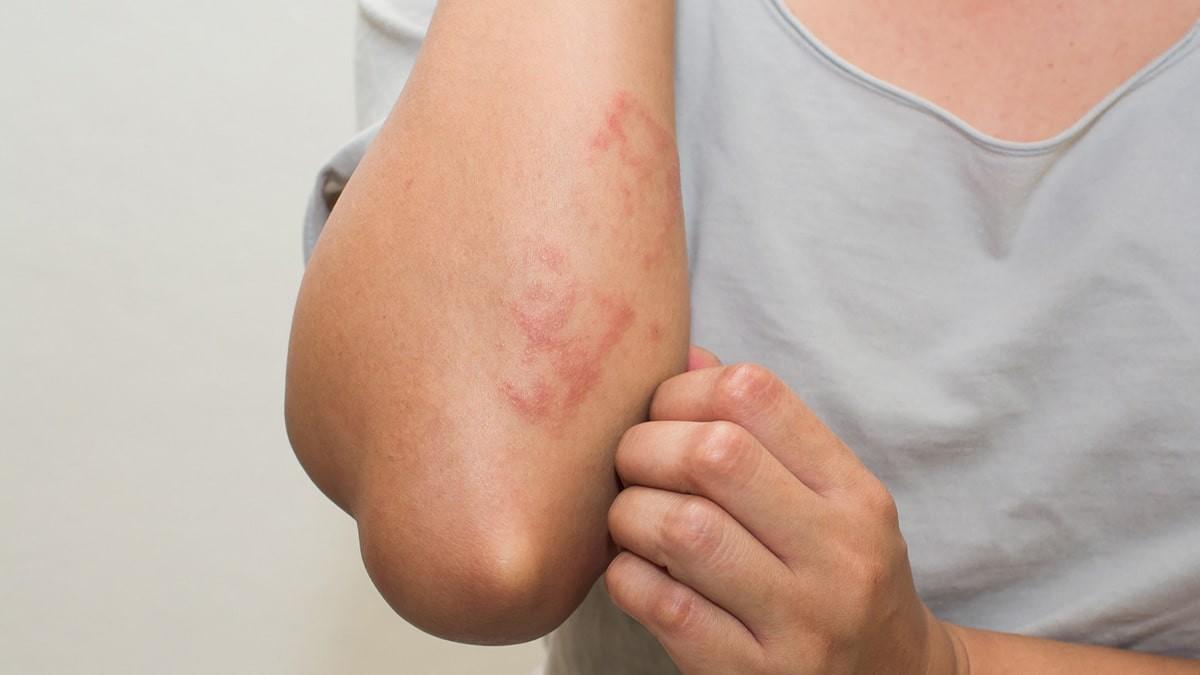 a bőr viszket és piros foltok jelennek meg egy fotóval)