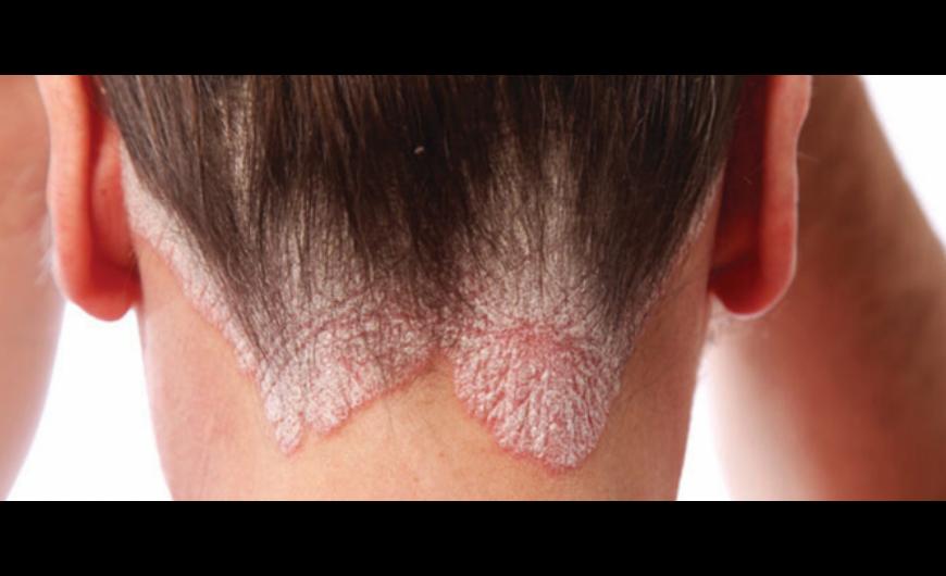 exilight a pikkelysömör kezelésében vörös folt a bőrön fotóleírás