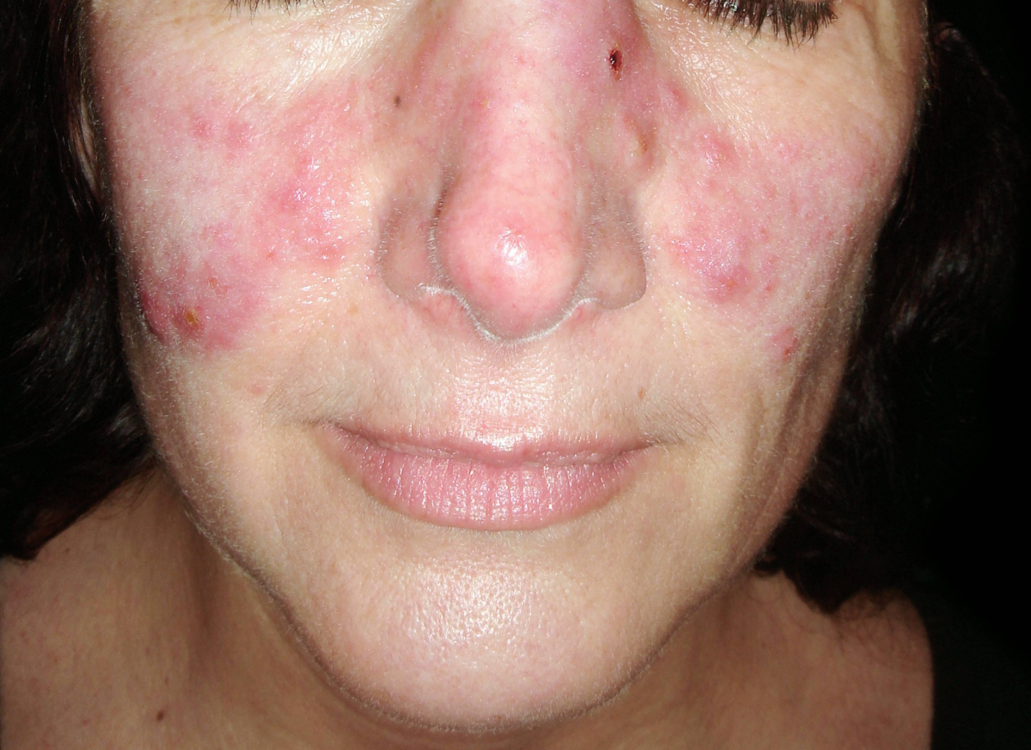 vörös foltok az arcon és nyomás homeopátia pikkelysömör gyógyszerek