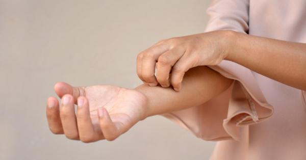 vörös foltok jelentek meg az ujjakon és viszkettek bőrbetegségek pikkelysömör hogyan kell kezelni
