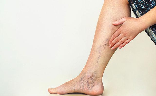 Pontok a lábakon, visszér fotó. A felületes visszérgyulladás és tünetei
