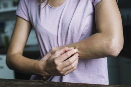 pikkelysömör és más bőrbetegségek kezelése