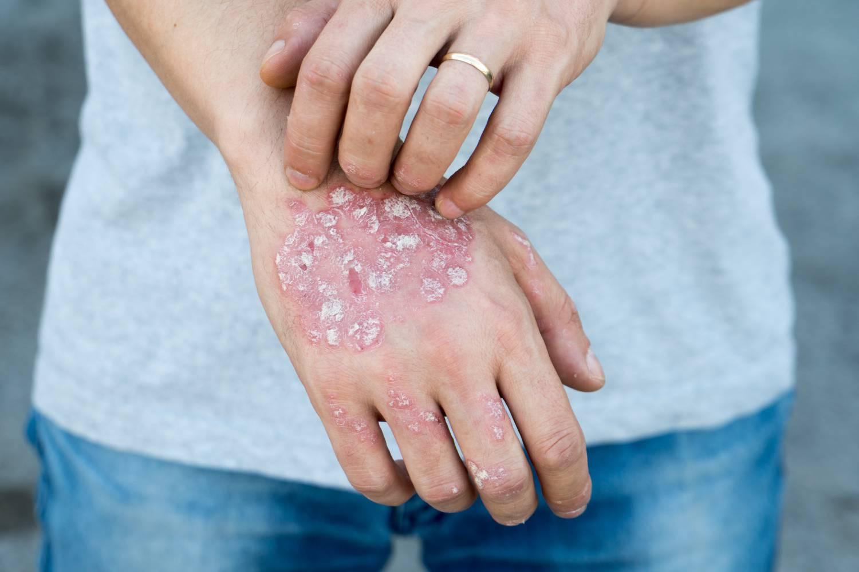 a pikkelysömör kezelésének tüneteiről