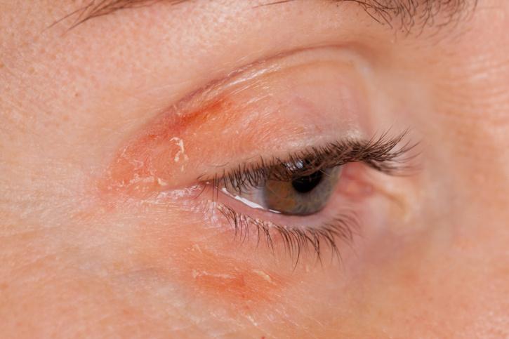 viszkető vörös foltok a szem alatt a bőr viszket és piros foltok jelennek meg egy fotóval