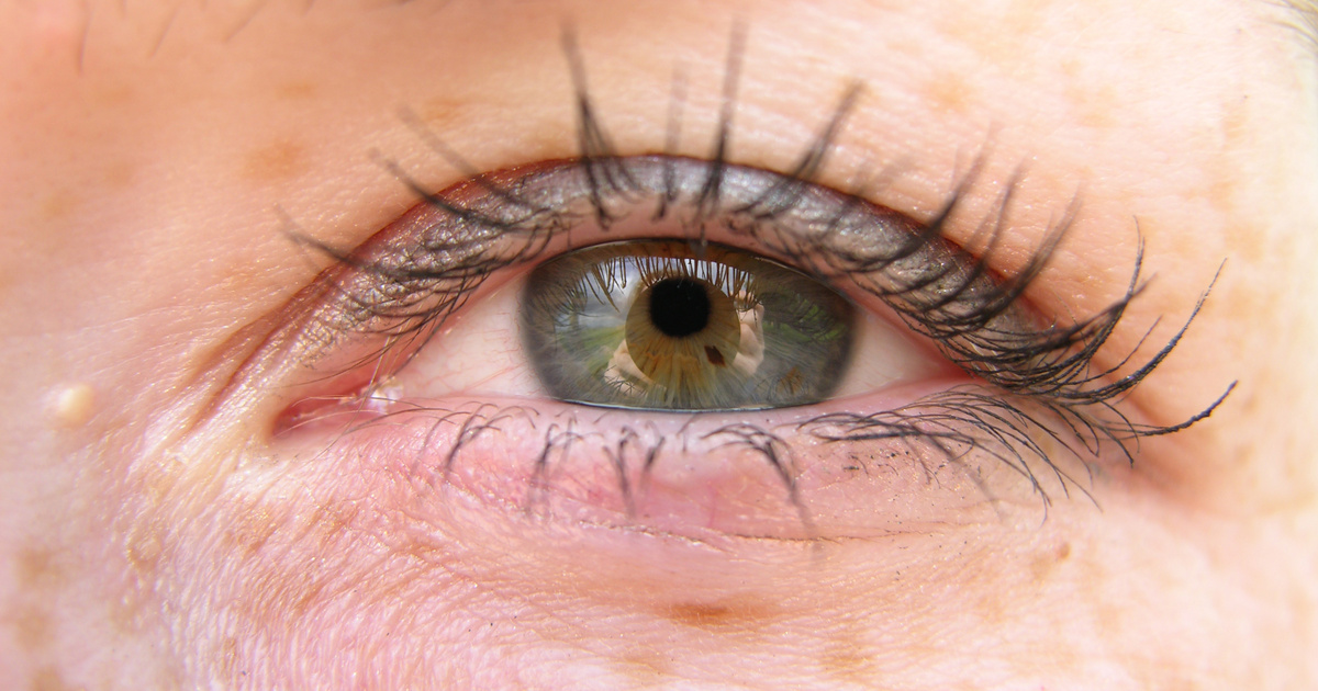 vörös foltok a szemhéjon lehúznak fotó vörös foltok a karon és az arcon
