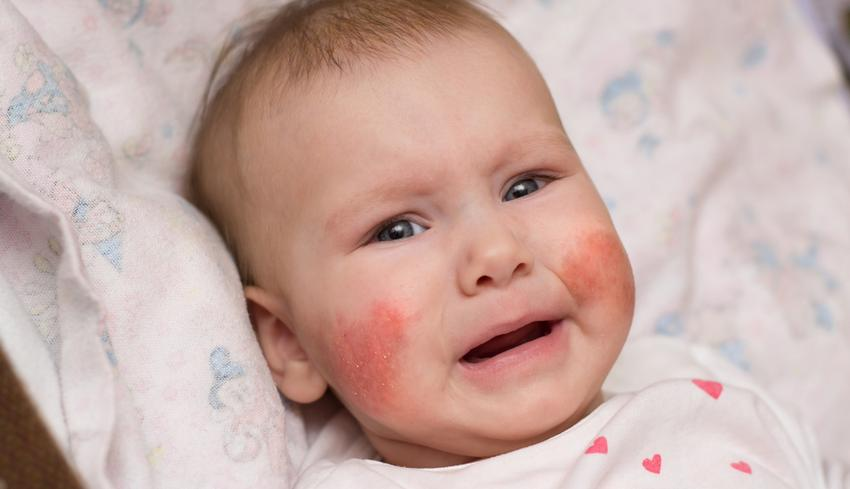 vörös foltok jelennek meg az arcon, és viszket, majd eltűnik