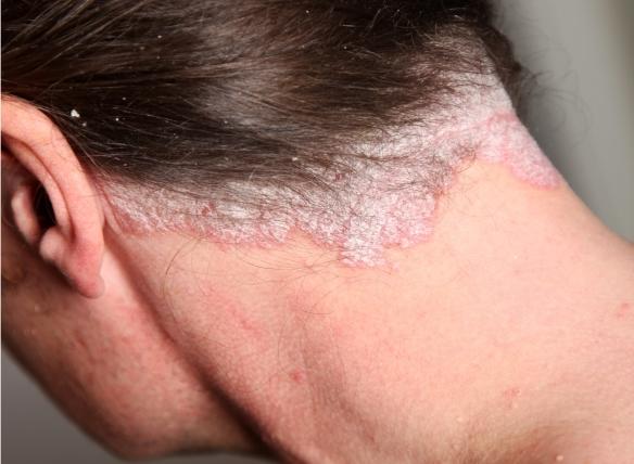 kenőcs pikkelysömör a fejen - A legjobb psoriasis krém