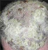 Pikkelysömör a fejbőrön   O'Rising Hajgyógyászat