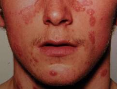 alternatív kezelés a pikkelysömörre az arcon