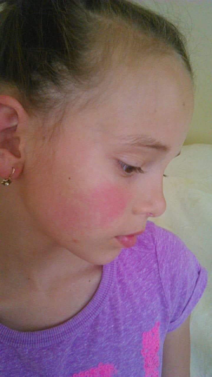 Vörös foltok viszketnek a fej hátsó részén egy felnőttnél