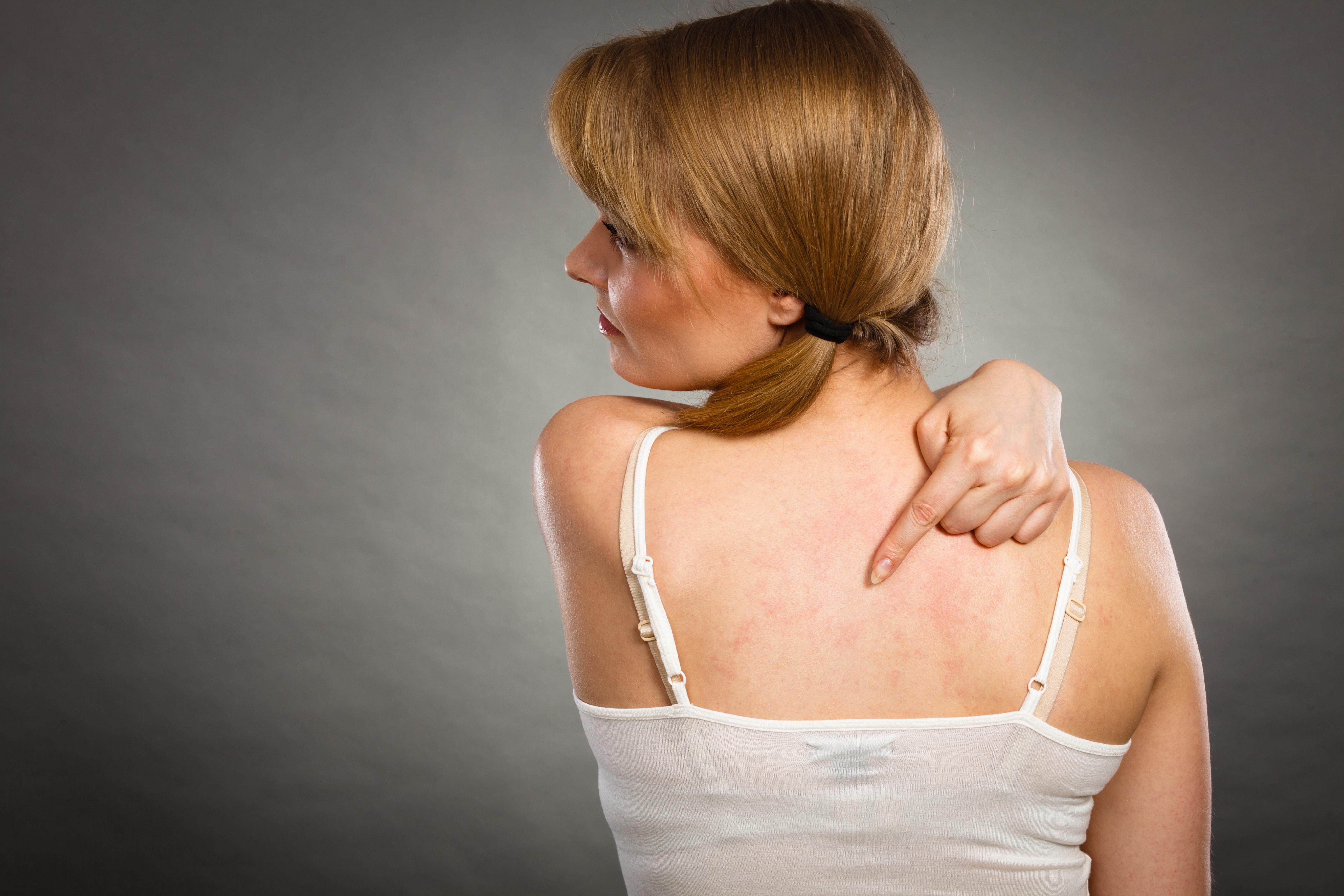 hatalmas vörös foltok a bőrön vörös foltok jelentek meg a hátán, a tubercles viszket fáj