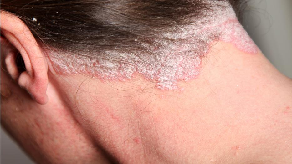 új kutatás a pikkelysömör kezelésében bőrkiütés vörös foltok formájában felnőtteknél