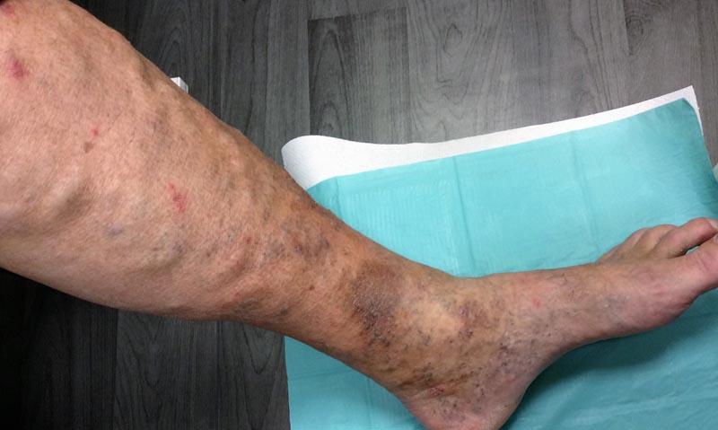 vörös foltok a lábakon lévő ereken