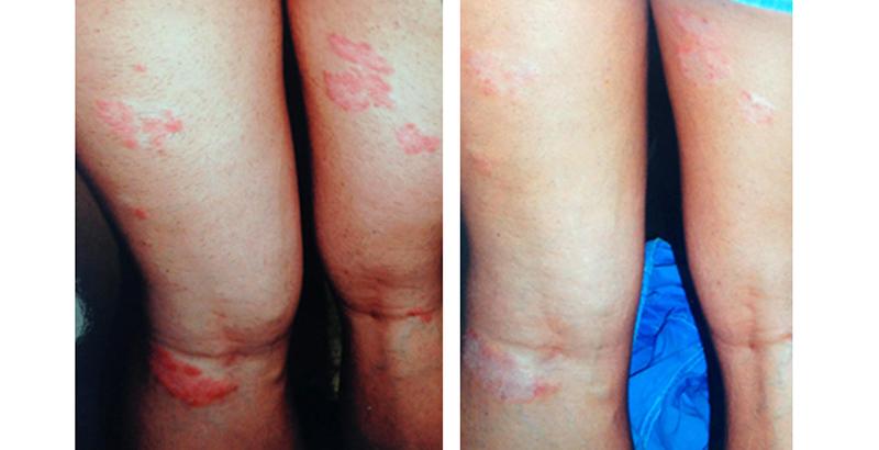 pikkelysömör kezelés előtt és után