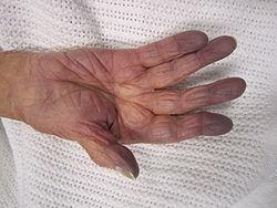 vörös foltok és egy kézszorító jelent meg a kezeken