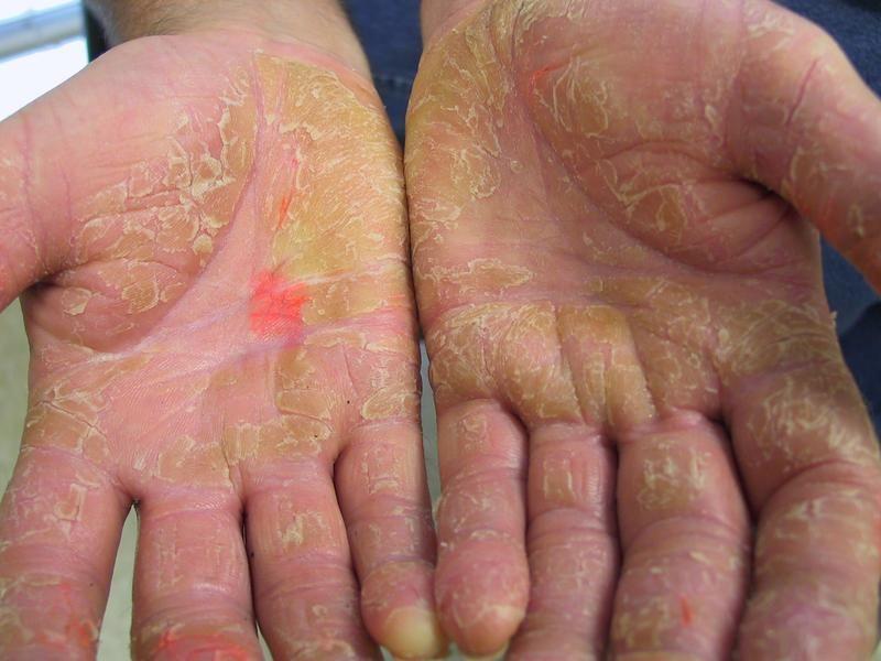 Aki palmoplantar pikkelysömör kezelésére emberek jogorvoslatok