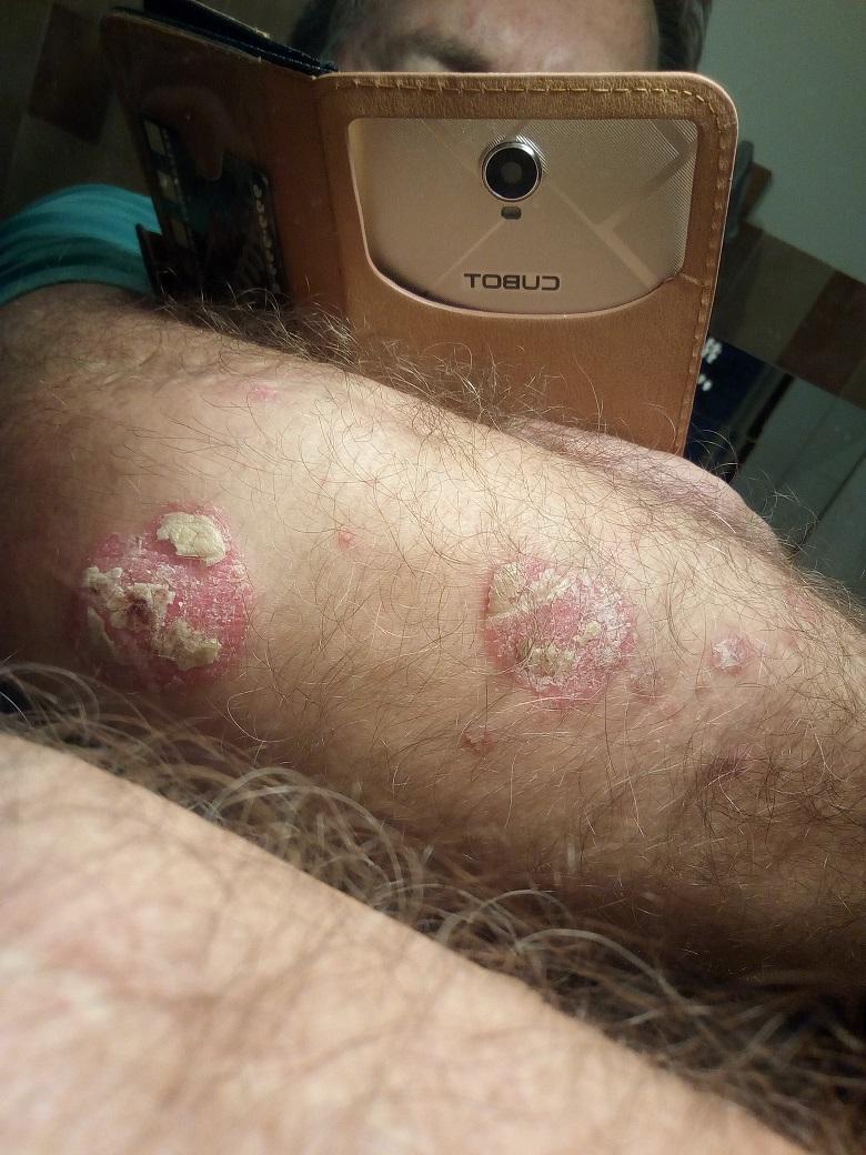 pikkelysömör kezelése immunológus véleményekkel gyógyszerek pikkelysömör kezelése