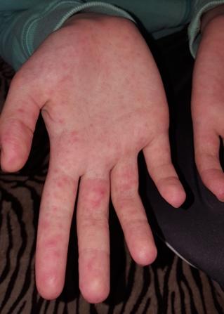 vörös foltok vannak a kezeken az ujjak között