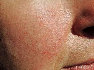 krémvörös foltok után az arcon