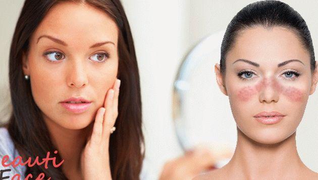 hogyan lehet eltávolítani a vörös foltokat az arcról népi gyógymódokkal hatékony gyógymód a pikkelysmr ellen