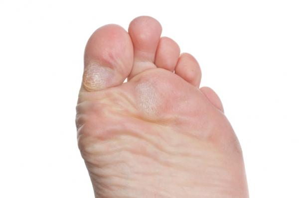 hogyan lehet eltávolítani a vörös foltokat a láb bőrkeményedéséből anti psoriasis krém d vitaminnal