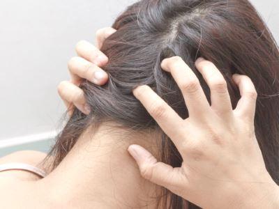 fejbőr psoriasis kezelése hormonok nlkl pattanások után vörös foltok vannak, mint kezelni