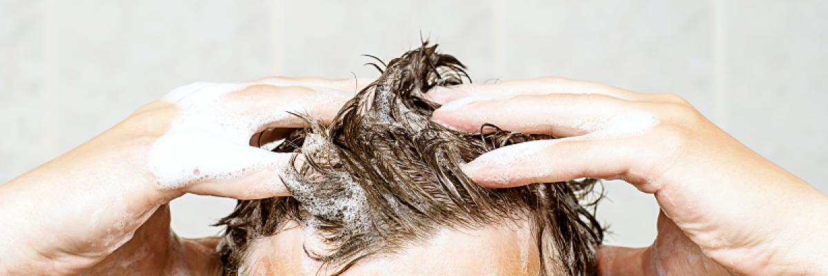 hogyan és mit kell kezelni a fejbőr pikkelysömörét