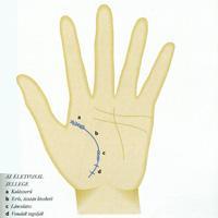 Plázs: A kéz és az ujjak leggyakoribb elváltozásai | atarhely.hu
