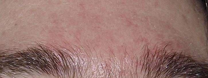 az arcon vörös foltok hámló bőr