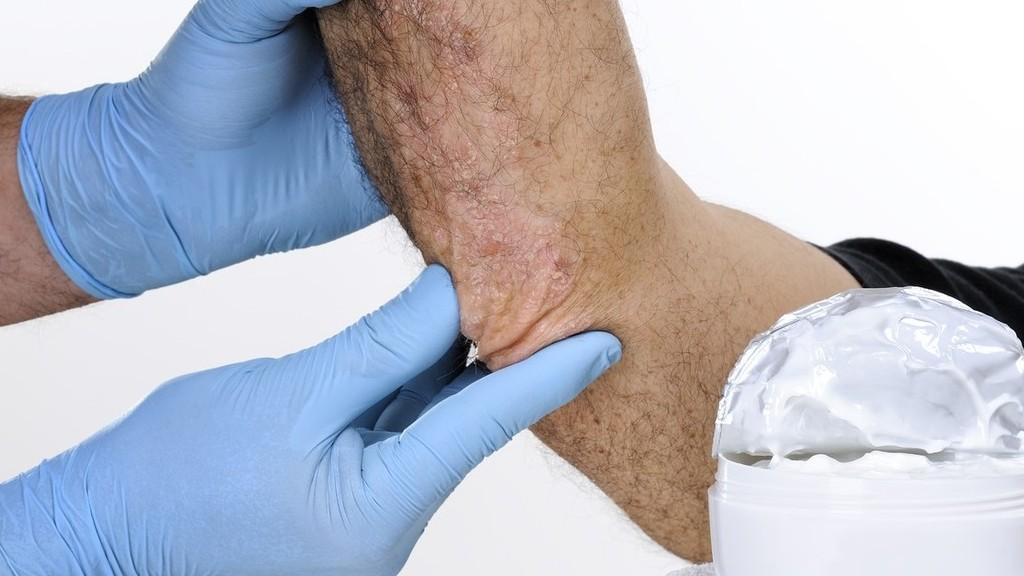 nem szokásos pikkelysömör kezelés vörös foltok a lábakon, mint a törött erek