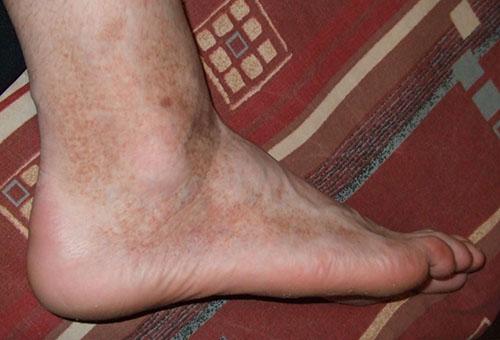 miért vannak piros foltokban a lábak