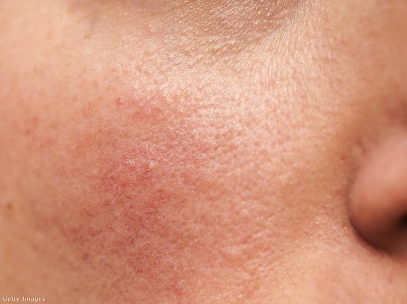 egy vörös folt a bőrön vakond formájában hogyan lehet piros foltokat kenni az arcon