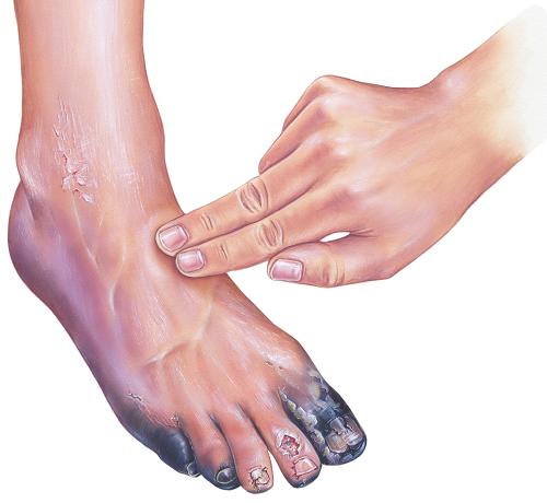 vörös foltok a cukorbetegség lábszárán pikkelysömör kezelése a fejen népi gyógymódokkal otthon