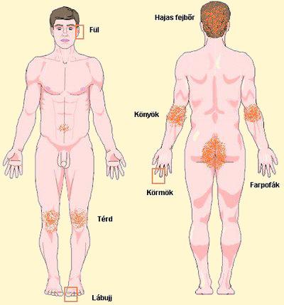 A pikkelysömör több, mint bőrbetegség - Egészségtér