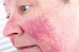 a hidegtől az arcot vörös foltok borítják hogyan lehet eltávolítani a bőrpírt a pikkelysömör kezein