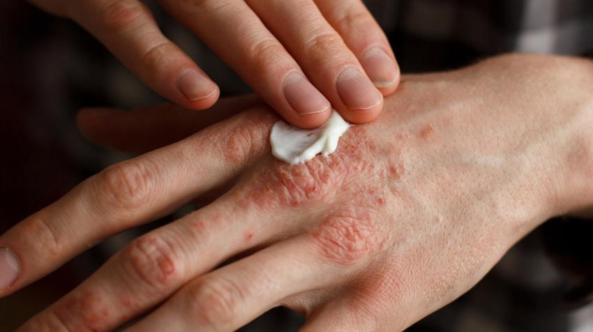vörös foltok az arcon lévő sebektől pikkelysömör kezelésére spray