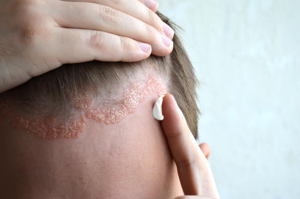 korpásodás kezelése pikkelysömörhöz vörös foltok az arcon viszketéssel