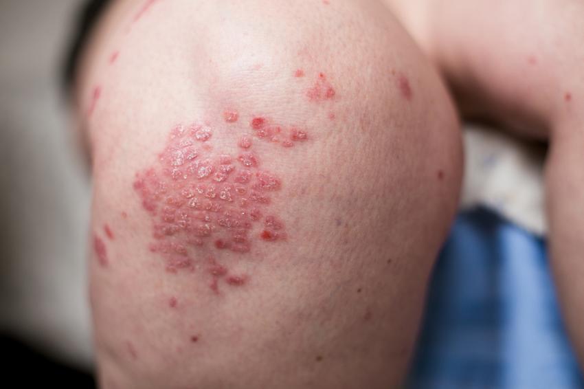 hogyan lehet enyhíteni a viszkető pikkelysömör vörös foltok vannak a gyomorban viszketés
