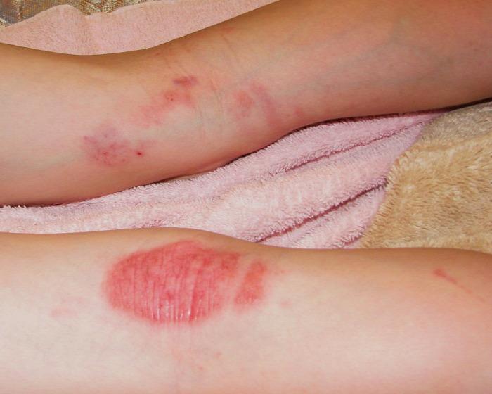 toe pikkelysömör kezelése krém viasz pikkelysömör fotó