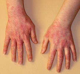 hogyan kell kezelni a pikkelysömör fején a kátrányt zúzódások és vörös foltok a bőrön