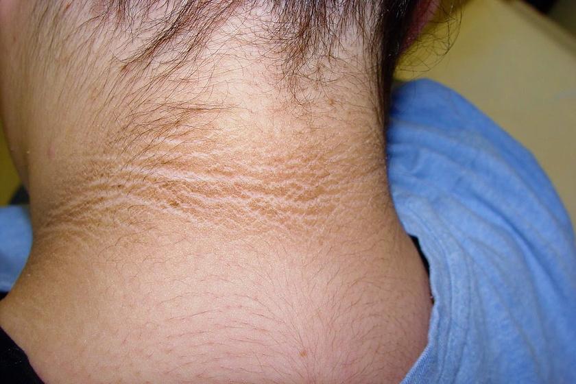 Piros foltok a bőrön, okok, kezelés - Gyermekekben
