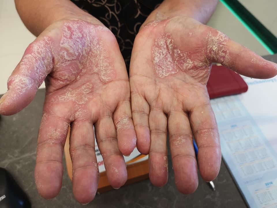 száraz vörös folt jelent meg a kézen